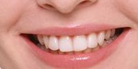 cliniche-dentali
